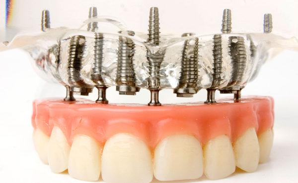 Implantología oral